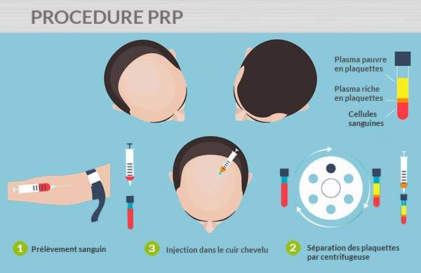 Traitement de la calvitie par PRP